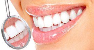 Mau Punya Gigi Putih Glowing, Perlu Anda Ketahui Semua Tentang Veneer Gigi