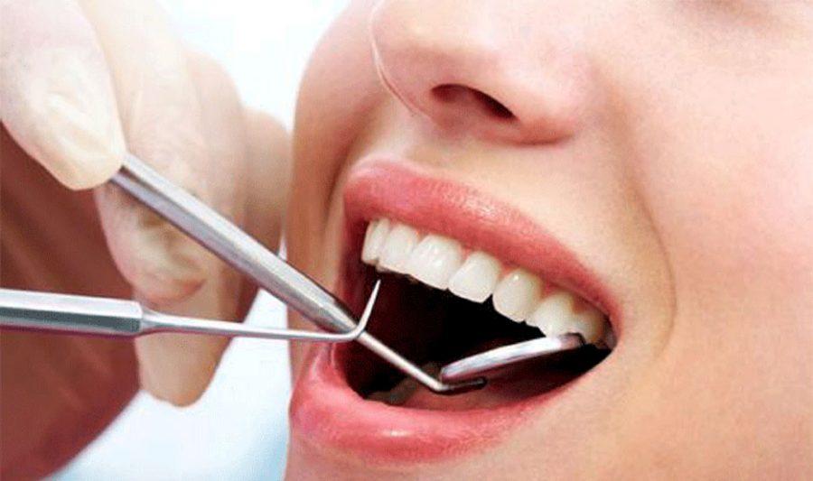 Ketahui Cara Menghilangkan Karang Gigi Dengan Scaling